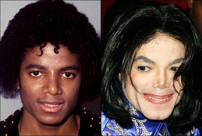 Image result for michael jackson before and after plastic surgery